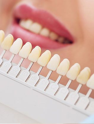 Estética dental en Jaén