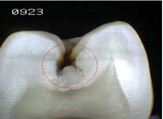 Otro ejemplo de caries en una radiografía