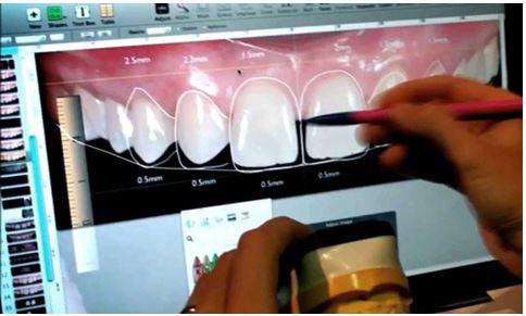 Tecnologia dental avanzada