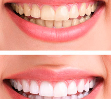 Clínica de estética dental en Jaén