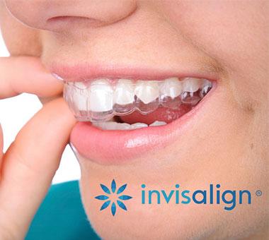 Aparato de ortodoncia Invisalign en Jaén