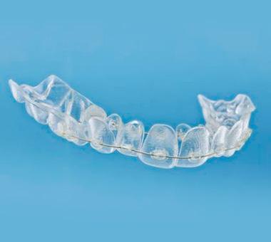 Ortodoncia aparato removible en Jaén