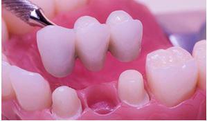 Puente fijo dental