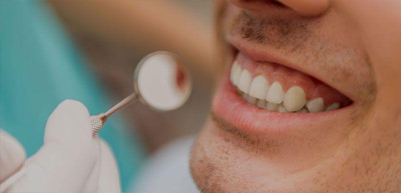 El mejor blanqueamiento dental en Jaén