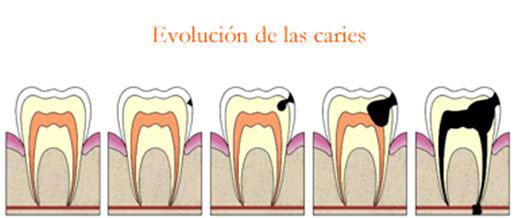 Evolución de la caries