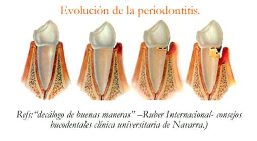 Evolución periodontitis