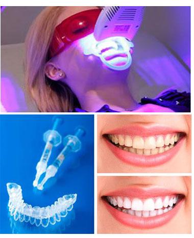 Blanqueamiento dental en Jaén