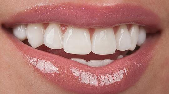 Carillas dentales en Jaén
