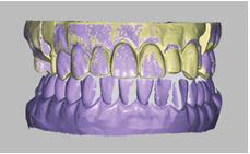 Tecnología dental 3d