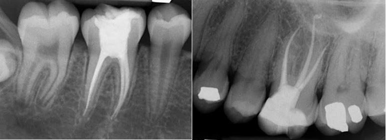 Tratamiento de endodoncia precio