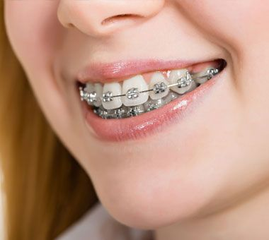 Especialista en ortodoncia en Jaén