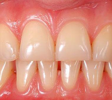 Tratamiento de periodoncia en Jaén